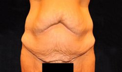 Manhattan abdominoplasty before 16